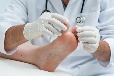 Foto de Doctor dermatologist examines the foot on the presence of athlete's foot - Imagen libre de derechos