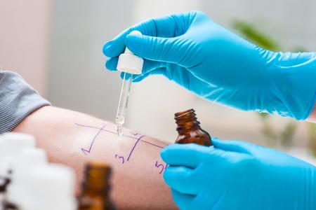 Foto de Skin prick allergy test to find out kind of allergy - Imagen libre de derechos