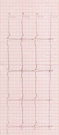 Foto de Electrocardiogram on a red paper tape. Conception of cure or healthy lifestyle. Background - Imagen libre de derechos