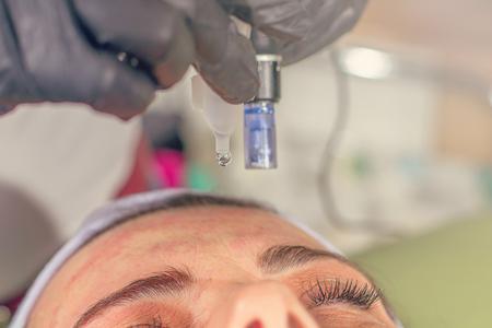 Photo pour Needle mesotherapy treatment on a woman face.  - image libre de droit