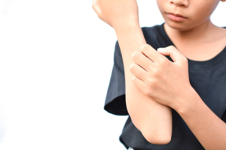 Foto de little Asian girl scratch itch hand on white background - Imagen libre de derechos