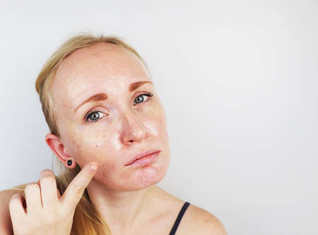 Photo pour Oily and problem skin. Portrait of a blonde girl with acne, oily skin and pigmentation - image libre de droit