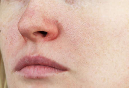 Photo pour Cuperosis on the nose of a young woman. Acne on the face. Examination by a doctor - image libre de droit