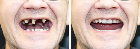 Foto de The patient at the orthodontist before and after the installation of dental implants. Tooth loss, decayed teeth, denture, veneers - Imagen libre de derechos