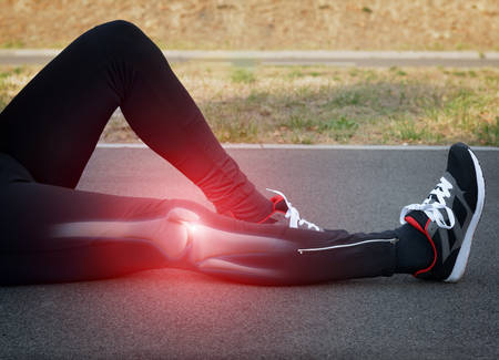 Photo pour Runner knee injury and pain with leg bones visible - image libre de droit
