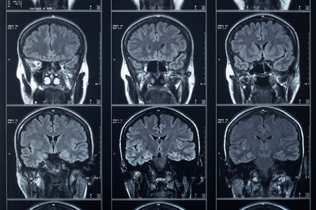 X-ray head and brain radiography