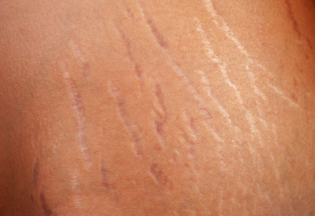 Photo for Stretch marks on the body of a pregnant woman - Royalty Free Image
