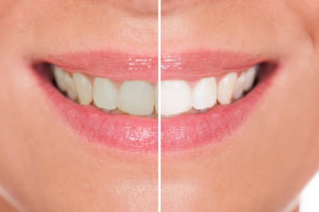 Foto de Close-up Of Woman Teeth Before And After Whitening - Imagen libre de derechos