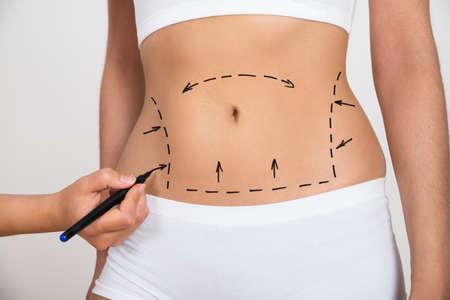 Foto de Person Hand Drawing Lines On A Woman's Abdomen As Marks For Abdominal Cellulite Correction - Imagen libre de derechos