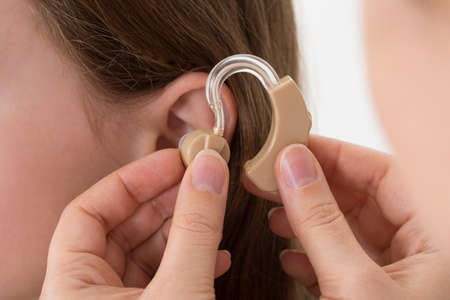 Foto de Close-up Of Doctor Inserting Hearing Aid In The Ear Of A Girl - Imagen libre de derechos