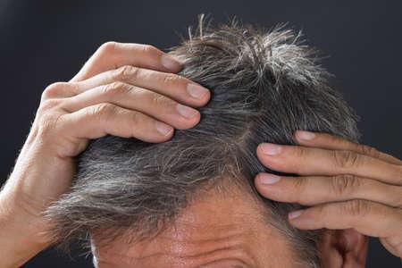 Photo pour Close-up of man examining his white hair - image libre de droit
