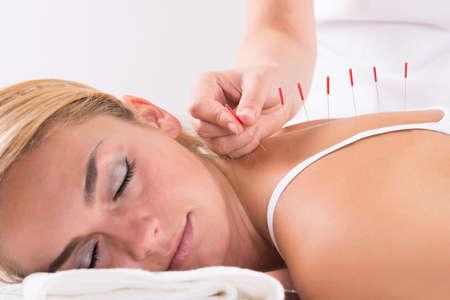 Foto de Closeup of hand performing acupuncture therapy on customer's back at salon - Imagen libre de derechos