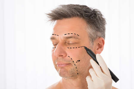 Photo pour Close-up Of Surgeon Hands Drawing Correction Lines On Man Face With Marker - image libre de droit
