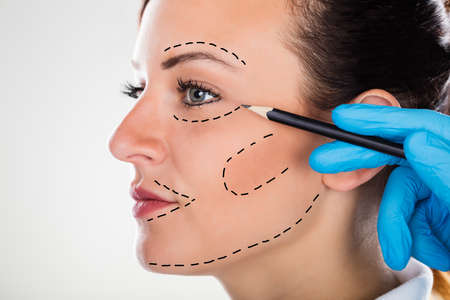 Photo pour Close-up Of A Surgeon Correction Drawing Lines On Young Woman Face For Plastic Surgery - image libre de droit
