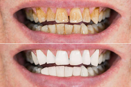 Photo pour Close-up Detail Of Man Teeth Before And After Whitening - image libre de droit