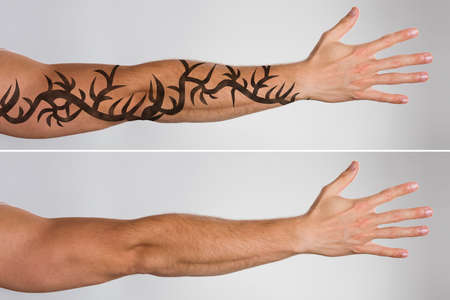 Photo pour Attractive Man's Hand Before And After Laser Tattoo Removal Treatment - image libre de droit