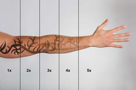 Photo pour Laser Tattoo Removal On Man's Hand Against Grey Background - image libre de droit