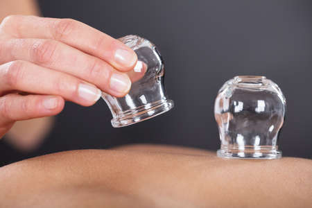 Photo for Close-up Of A Therapist Giving Cupping Treatment On Back - Royalty Free Image