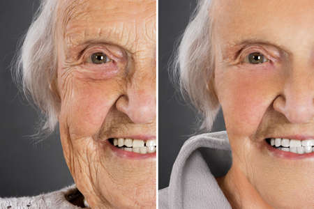 Photo pour Senior woman anti aging skin treatment before and after - image libre de droit