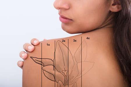 Photo pour Laser Tattoo Removal On Woman's Shoulder Against White Background - image libre de droit