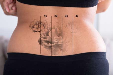 Photo pour Rear View Of Laser Tattoo Removal On Woman's Hip - image libre de droit