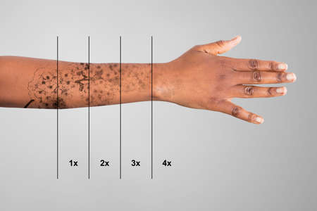 Photo pour Laser Tattoo Removal On Woman's Hand Against Grey Background - image libre de droit