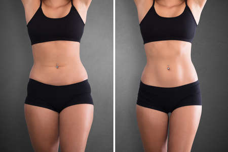 Photo for Close-up Of Fat And Slim Woman Before And After Diet - Royalty Free Image