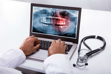 Foto de Close-up Of A Dentist's Hand Typing On Laptop With Dental X-ray On Screen - Imagen libre de derechos