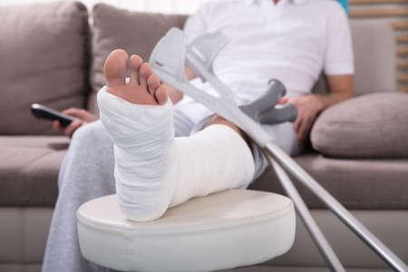 Foto de Young Man With Broken Leg Sitting On Sofa Holding Remote - Imagen libre de derechos