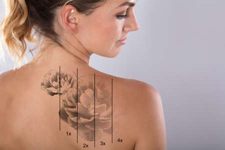 Photo pour Laser Tattoo Removal On Woman's Shoulder Against Gray Background - image libre de droit