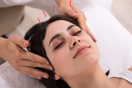 Photo pour Relaxed Young Woman Receiving Acupuncture Treatment In Beauty Spa - image libre de droit