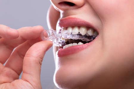Photo pour Close-up Of A Woman's Hand Putting Transparent Aligner In Teeth - image libre de droit