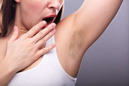 Foto de Close-up Of A Young Woman With Hairy Armpit - Imagen libre de derechos