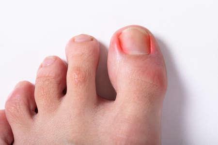 Foto de An Elevated View Of Sore Toe Nail On Floor - Imagen libre de derechos