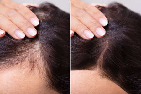 Foto de Woman Before And After Hair Loss Treatment - Imagen libre de derechos