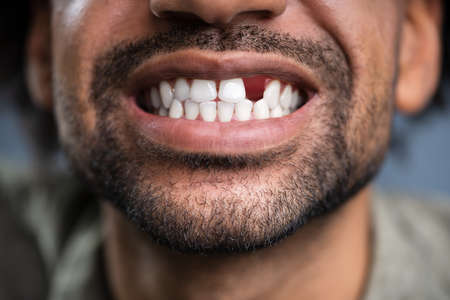 Photo for Close Up Photo Of Young Man With Missing Tooth - Royalty Free Image