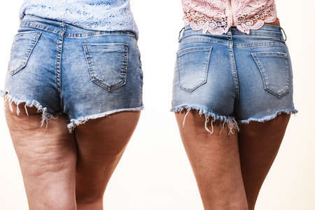 Photo pour Comparison of female legs thighs with and without cellulite. Skin problem, body care, overweight and dieting concept. - image libre de droit
