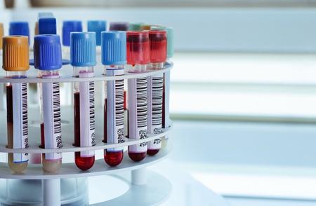 Foto de tubes prepared in lab centrifuge machine blood bank - Imagen libre de derechos