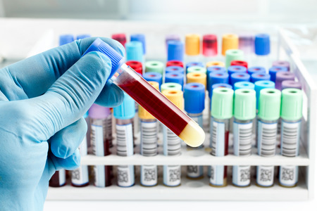 Foto de hand of a lab technician holding blood tube test and background a rack of color tubes with blood samples other patients / laboratory technician holding a blood tube test - Imagen libre de derechos