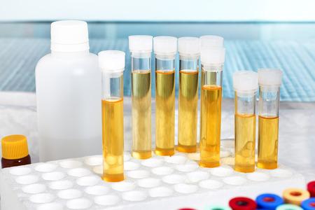 Foto de rack with several tubes with urinalysis in a laboratory workbench / analysis of urine in lab - Imagen libre de derechos
