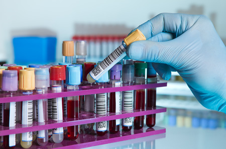 Foto de hand of a lab technician taking a tube of blood from a rack and the background color tubes with samples from other patients hand of laboratory technician holding a blood tube for analysis - Imagen libre de derechos
