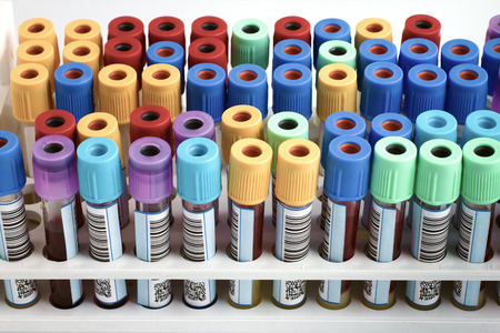 Foto de Tubes with bar code for analysis of blood samples in the hospital table  rack of blood tubes labeled in blood bank lab - Imagen libre de derechos