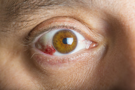 Foto de Red bloodshot eyes in a middle aged man - Imagen libre de derechos