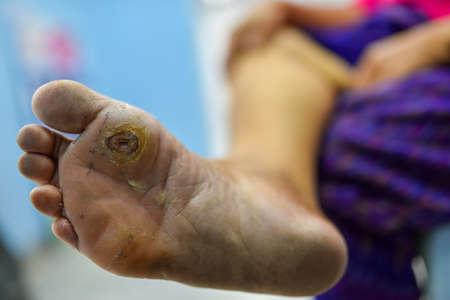 Foto de diabetes foot at sole of foot and sole of big toe, foot screen in diabetes patient for prevent complication - Imagen libre de derechos