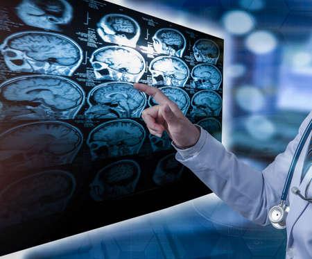 Photo pour doctor pointing finger to CT scan film, medical concept - image libre de droit
