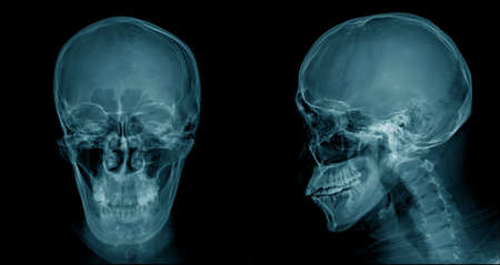 Photo pour skull x-ray image, head injury x-ray for lession dignosis - image libre de droit
