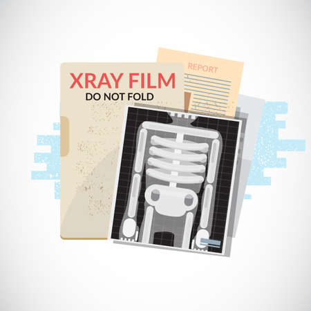 Ilustración de Human X-Ray film with paper and folder. Medical objects, file and document - vector illustration. - Imagen libre de derechos