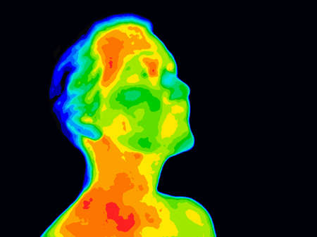 Photo pour Thermographic image of a human face and neck showing different temperatures in a range of colors from blue cold to red hot. Red in the neck might indicate raised CR-P levels, this could be a sign of inflammation, and Carotid Artery inflammation which coul - image libre de droit