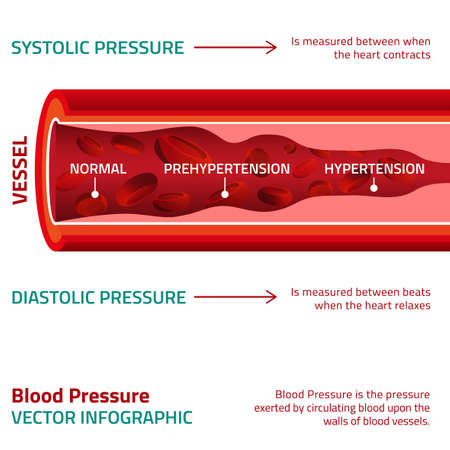 Illustration pour Beautiful vector illustration of blood pressure infographic. Abstract medicine concept. Useful for poster, indographics, placard, leaflet, brochure, print, book and advertisement graphic design. - image libre de droit