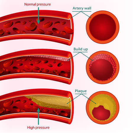 Illustration pour Beautiful  illustration of blood pressure info graphic. Abstract medicine concept. Useful for poster, indographics, placard, leaflet, brochure, print, book and advertisement graphic design. - image libre de droit
